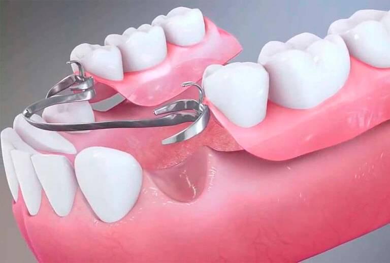 Протезирование зубов металлокерамикой: минусы и плюсы металлокерамики