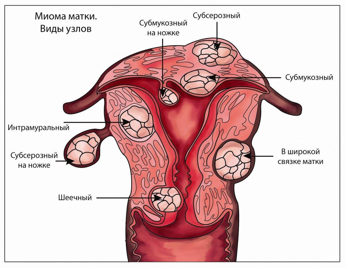 Влияние климакса на миому матки