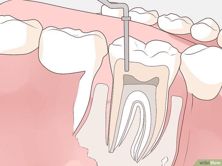 Что такое абсцесс зуба и как его лечить?