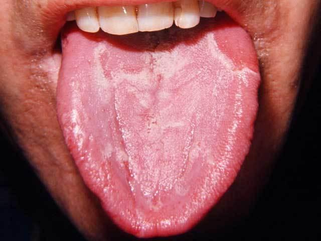 Причины возникновения и методы лечения глоссита языка