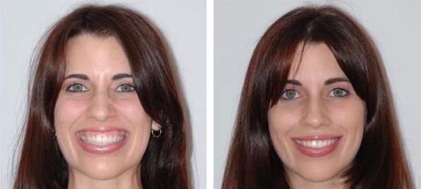 Десневая улыбка: коррекция с фото до и после подрезания, применения ботокса