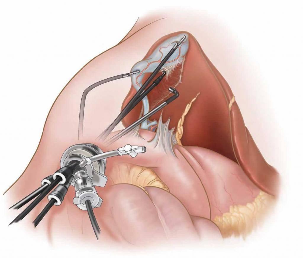 Послеоперационный период удаления миомы матки