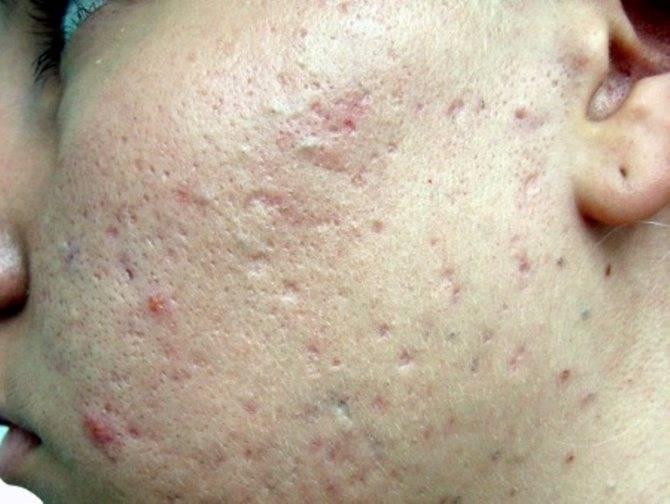 Почему появляется воспаление на лице после выдавленного прыща и как его быстро убрать за несколько минут?