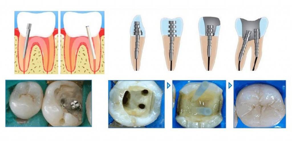 Внезапная неприятность: что делать, если с зуба отвалилась коронка? срочные меры