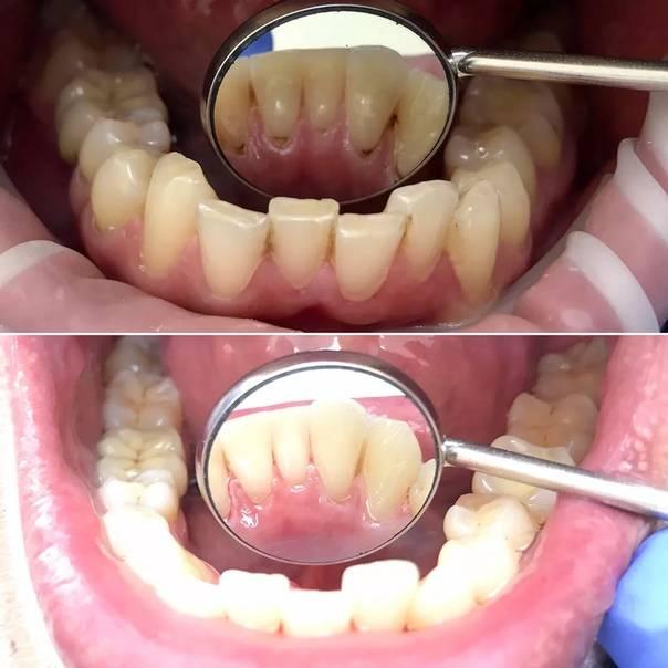 Для тех, кто хочет иметь красивую улыбку: способы чистки зубов у стоматолога и в домашних условиях