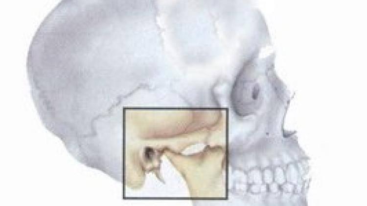 Артрозы внчс — поражение челюстно-лицевого сустава: причины, симптомы и методы лечения