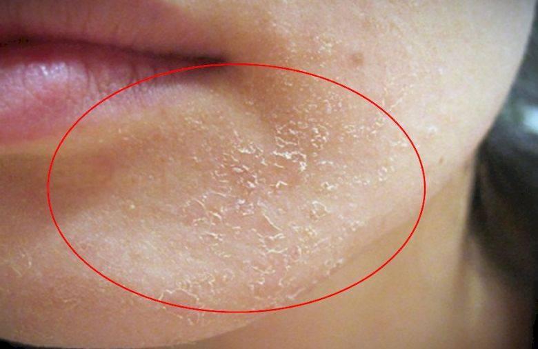 Шелушится кожа на подбородке. шелушение кожи на подбородке – причины возникновения