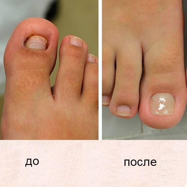 Как происходит удаление ногтевой пластины и особенности послеоперационного периода