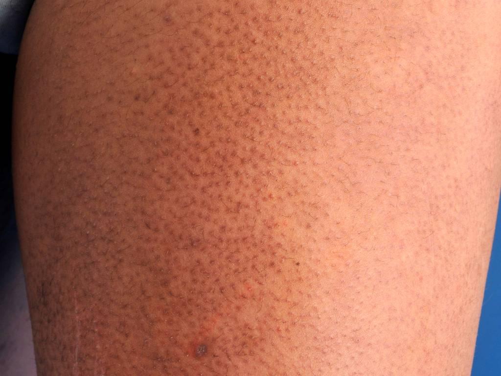 Гусиная кожа. как избавиться, причины высыпаний на ногах, руках, под глазами, на шее, локтях, фото