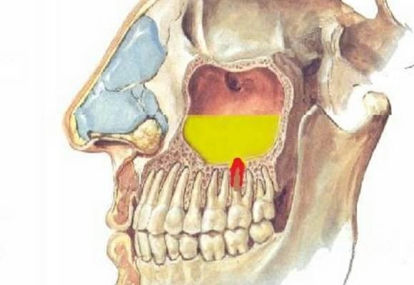 К чему может привести киста гайморовой пазухи? как лечить без операции
