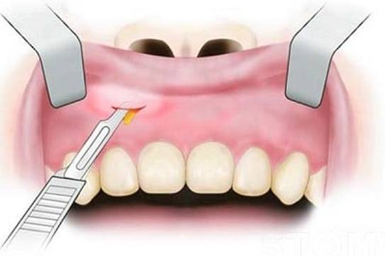 Абсцесс зуба симптомы