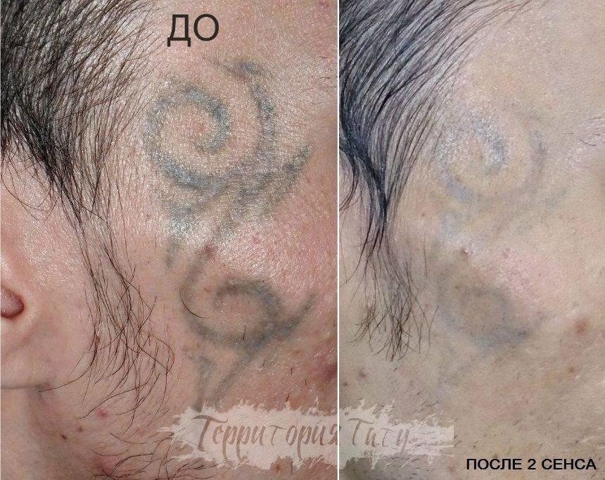 Удаление татуировок и перманентного макияжа лазером: особенности, преимущества и результат