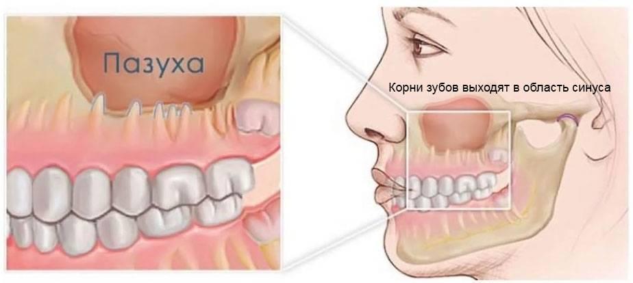 Что такое перфорация в стоматологии и какие могут быть последствия патологии?