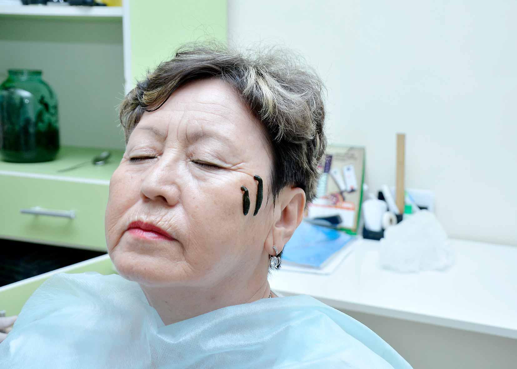 Применение пиявок в косметологии — подтяжка и омоложение лица, отзывы