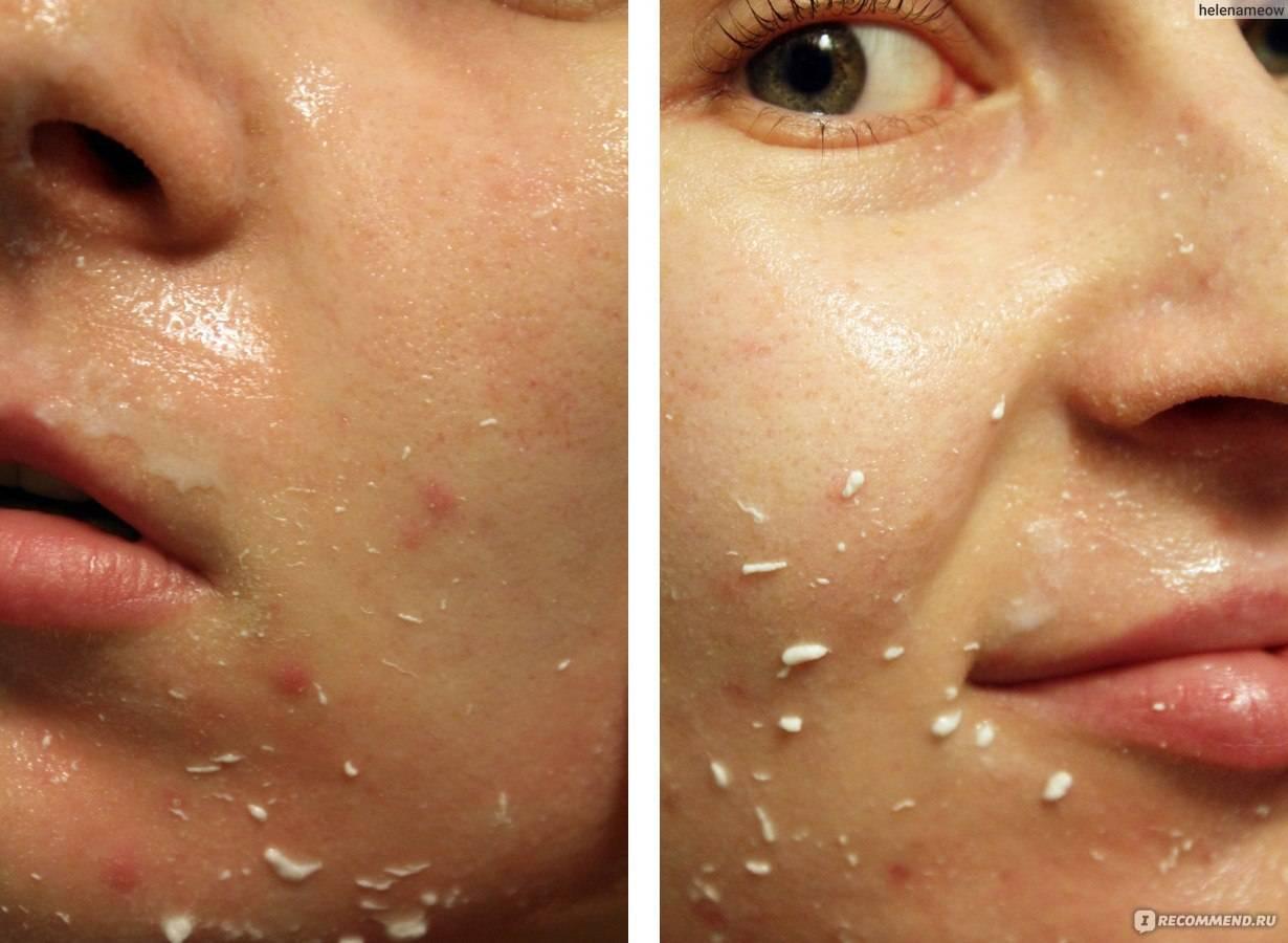 Пилинг-скатка: современный способ очищения кожи