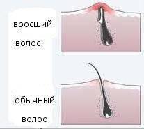 Боремся с вросшими волосами после шугаринга: почему врастают и что делать?