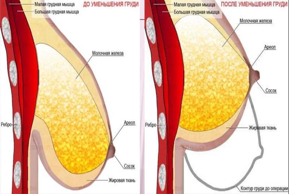 Обвисла грудь после родов и кормления: как подтянуть и восстановить упругость