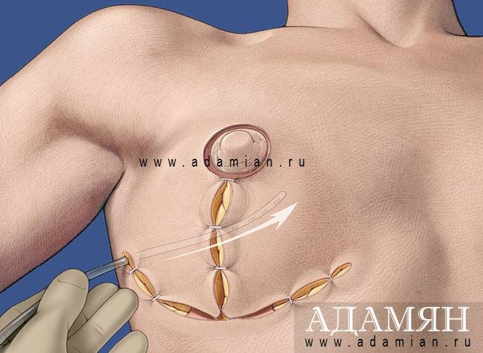 Вторичная маммопластика