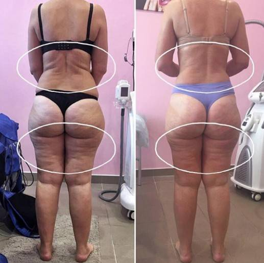 Инфракрасные штаны для похудения — показания и противопоказания, отзывы с фото до и после процедуры