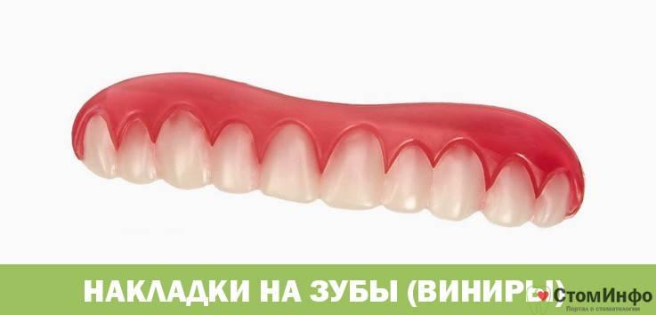 Накладки на передние зубы: фото виниров, клипс и других протезов для красоты улыбки