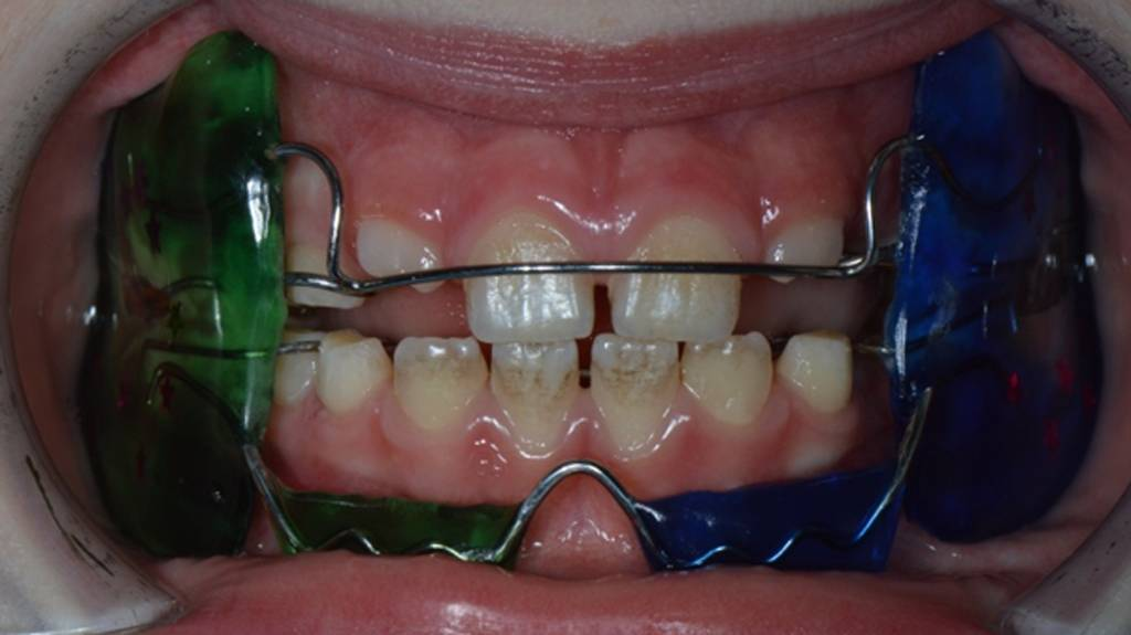 Узкая челюсть: аппарат для расширения у взрослых и детей (с фото)