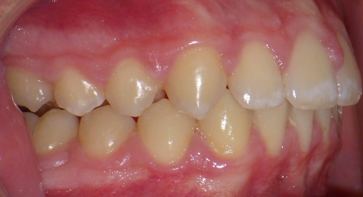 Какие симптомы и признаки есть у рака зуба: причины и диагностика опухоли, виды и методы лечения