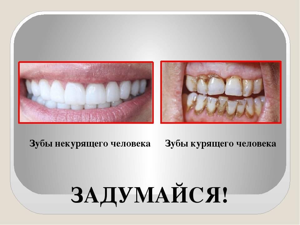 Курение и имплантация зубов. почему после процедуры нельзя сигареты?