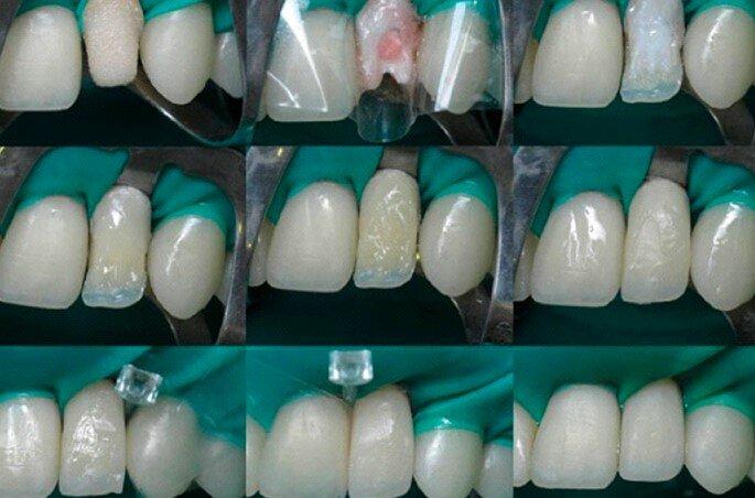 Особенности полного протезирования зубов