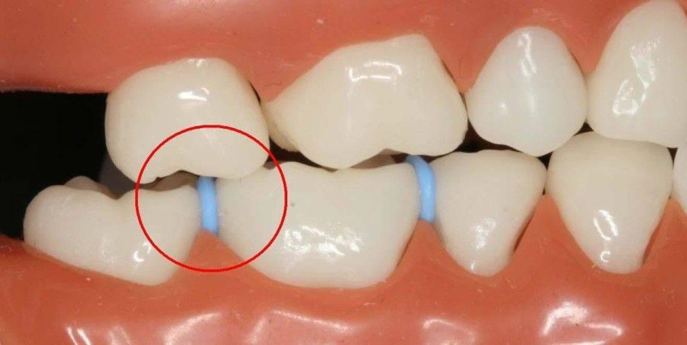Понятие сепарации зубов, показания к проведению процедуры и ее последствия, фото до и после