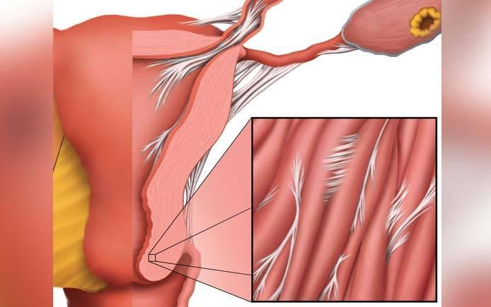 Спайки в матке: причины, симптомы, методы терапии