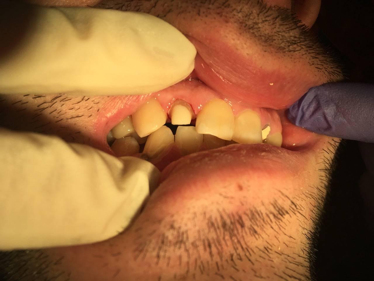 Как восстановить зубы и причина разрушения зубов