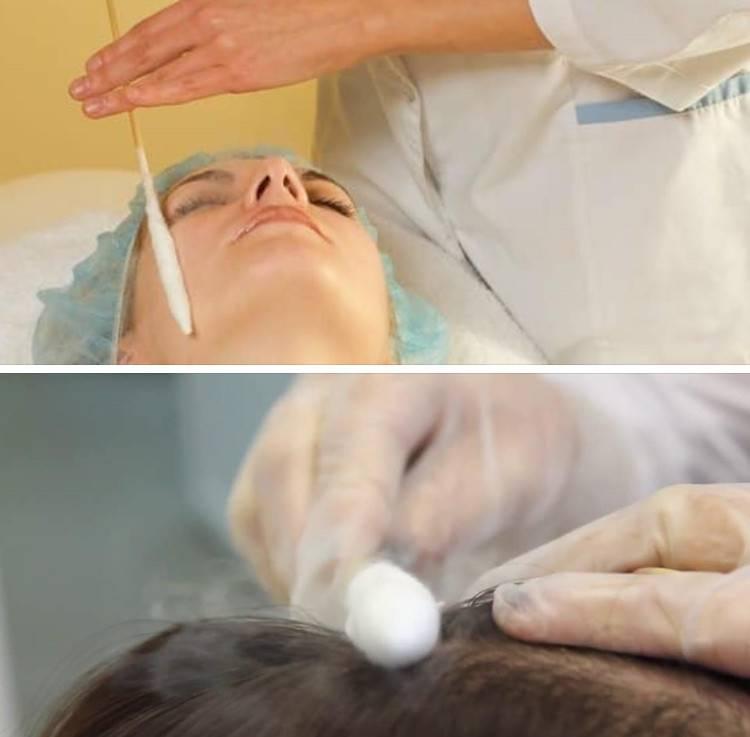 Криомассаж кожи лица и головы: когда эффективен, кому показан и как его выполнять