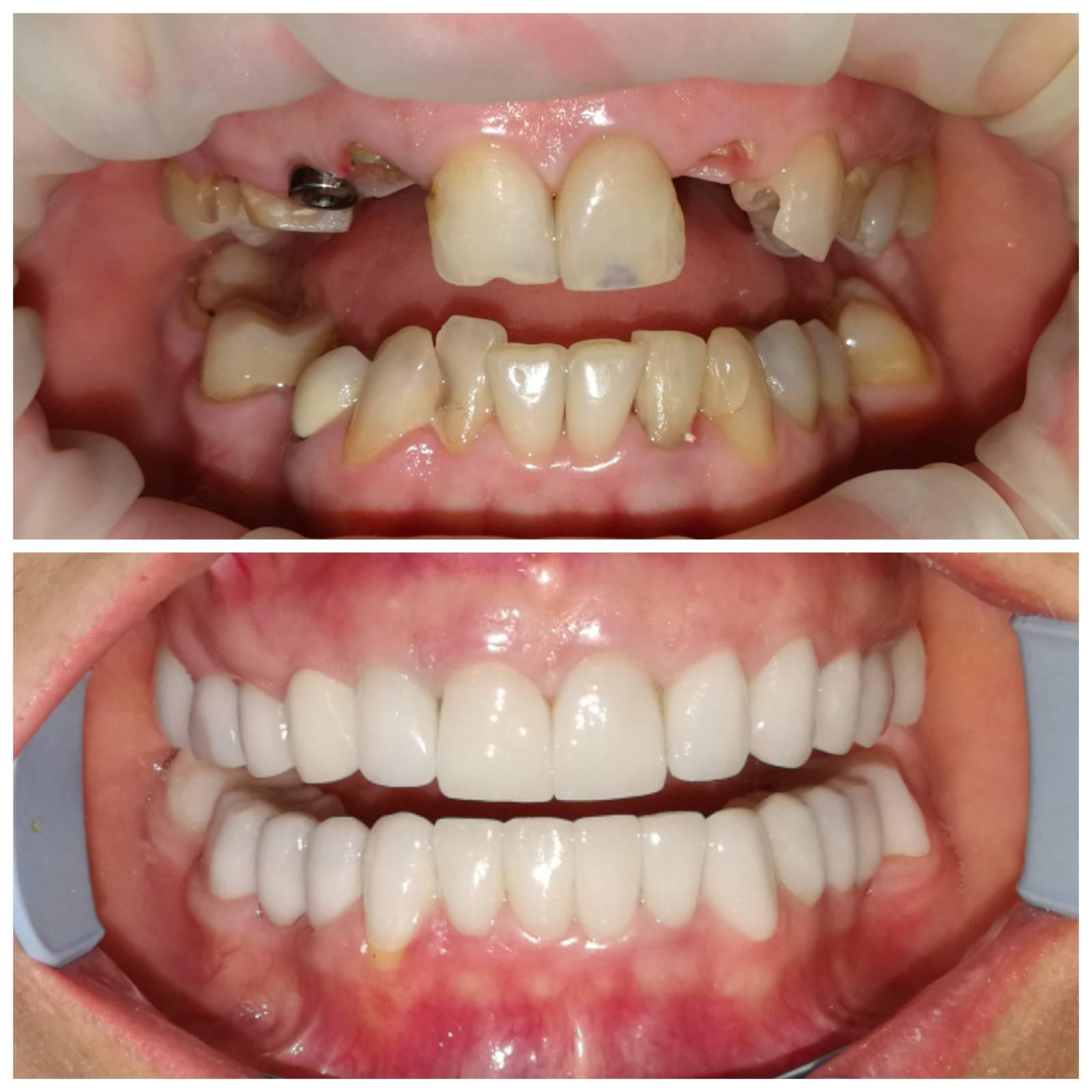 Имплант или зубной мост: что лучше выбрать и в чем разница между конструкциями?