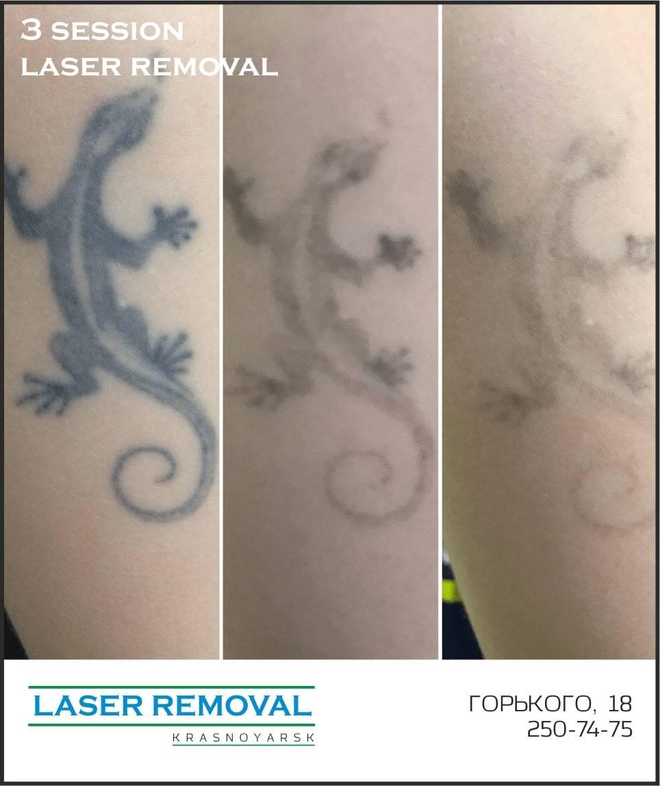 Удаление татуировок лазером: фото до и после, отзывы