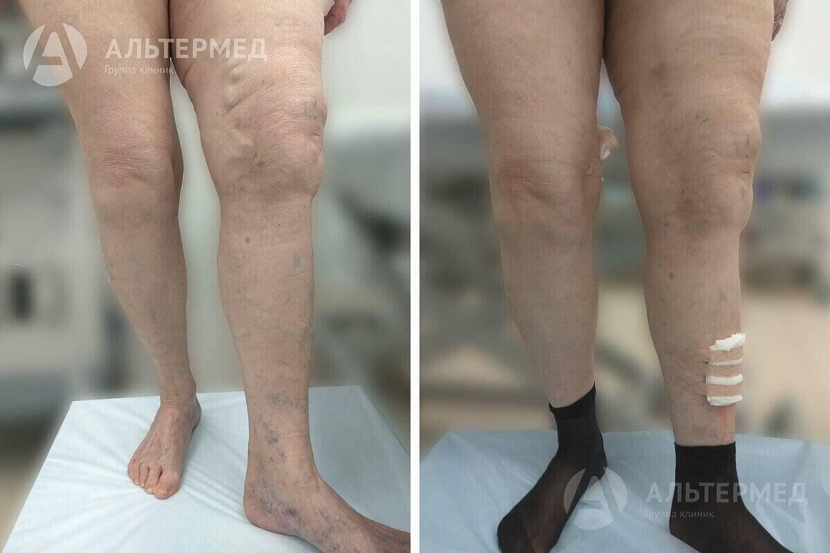 После склеротерапии появились новые вены