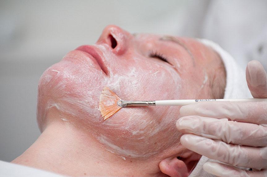 Всесезонный фитиновый пилинг — звездное омоложение для кожи с куперозом