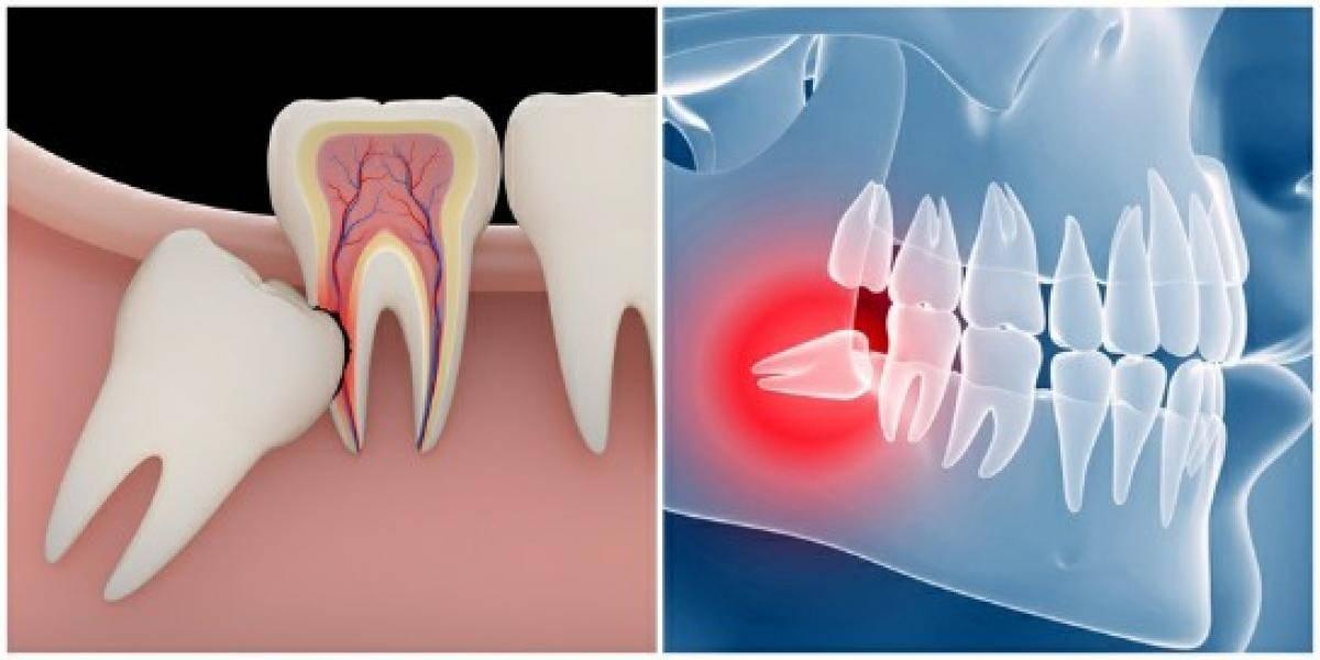 Прорезывание зубов мудрости – особенности процесса и облегчение симптомов