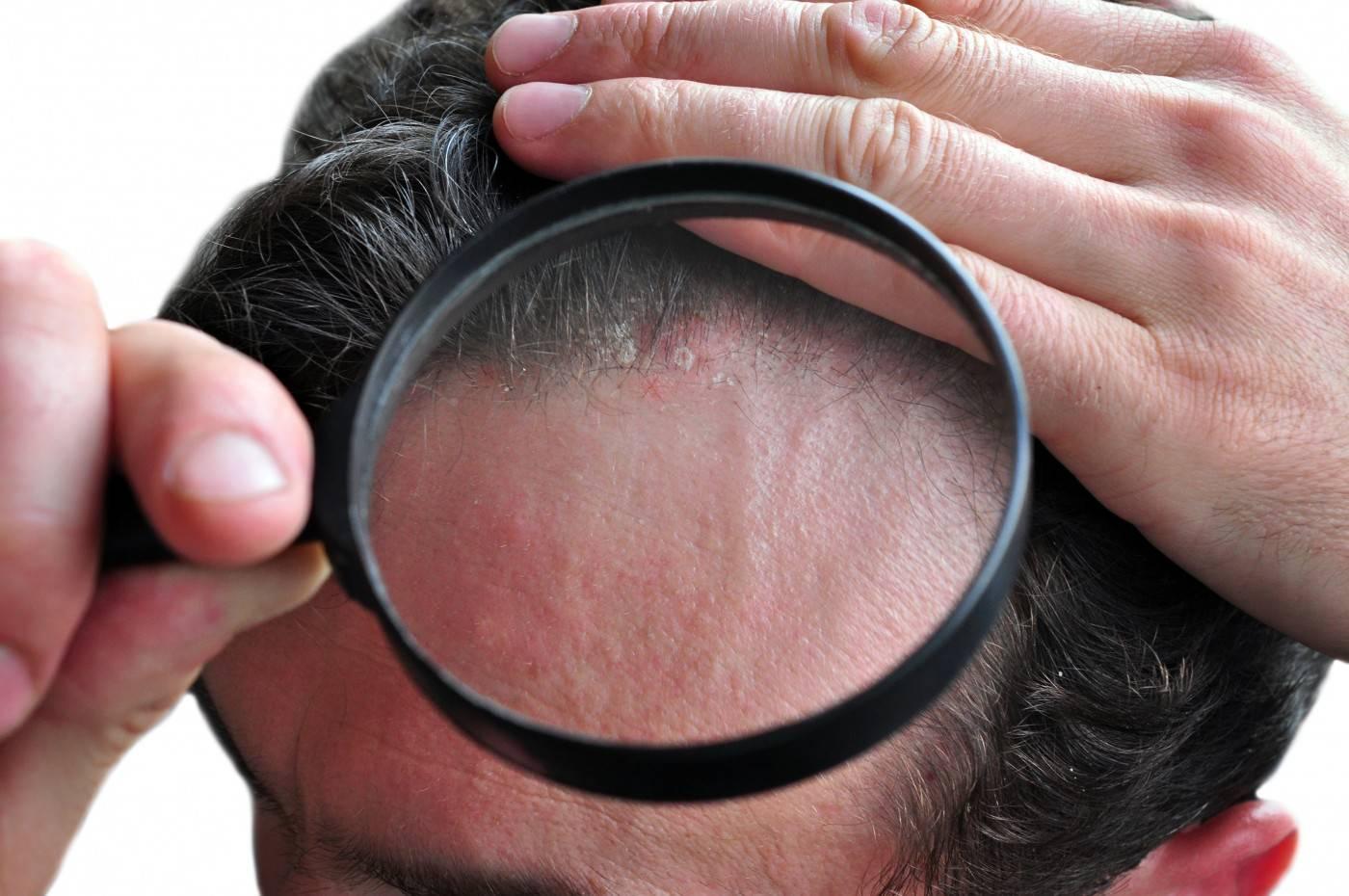 Появилась перхоть и чешется голова: причины и методы лечения