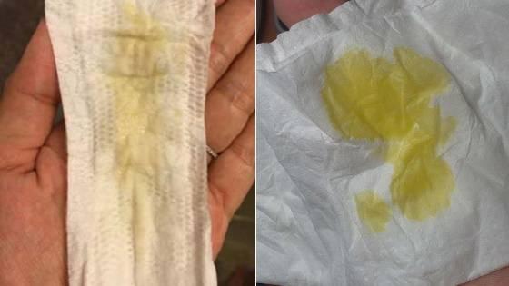 Опасны ли коричневые выделения с запахом? коричневые выделения у женщин с запахом и без: причины появления и лечение