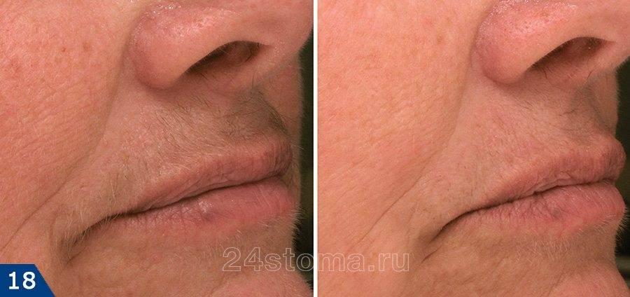 Фотоэпиляция усиков над верхней губой у женщин: особенности, противопоказания и сколько сеансов требуется