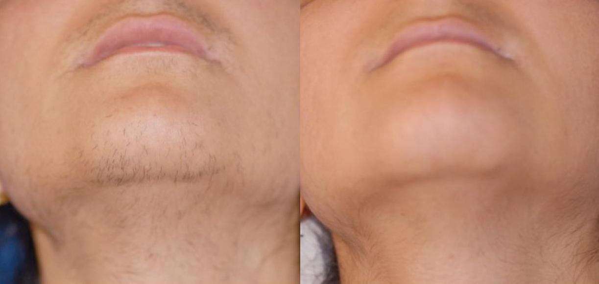 Лазерная эпиляция с отзывами и фото до и после