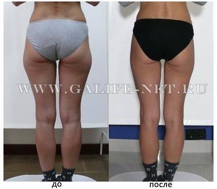 Липопластика что это? омолаживающия ручная и аппаратная процедура +фото до и после