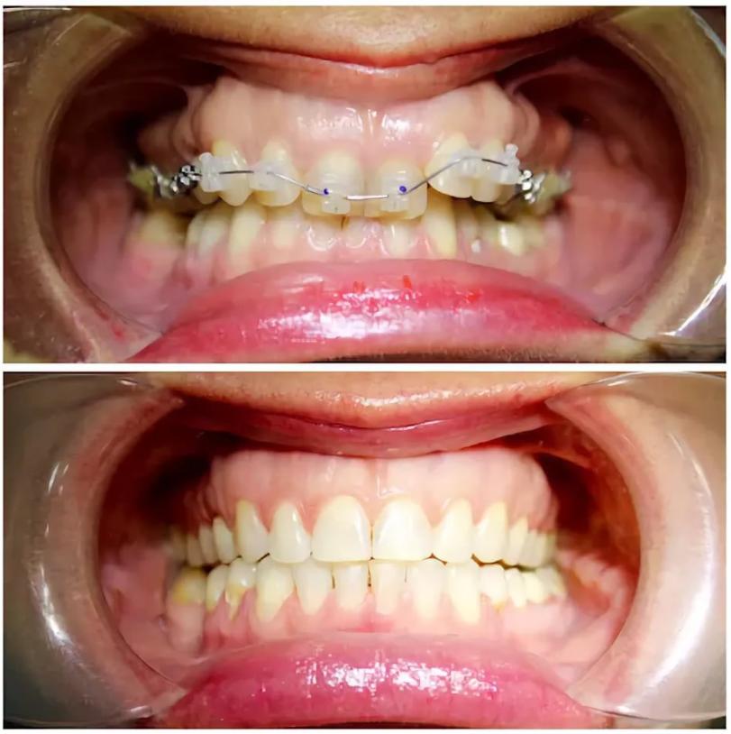 Ретейнеры для зубов после брекетов: зачем нужны, как устанавливаются и насколько