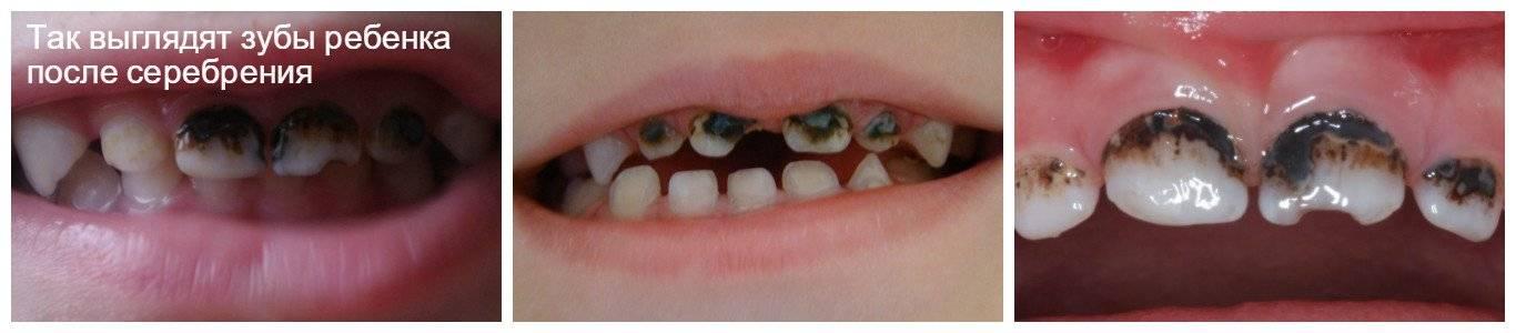 Почему гниют зубы от десны