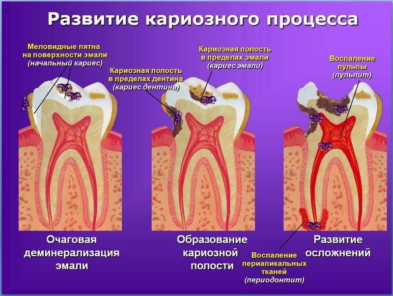 Не стоит медлить с лечением! чем опасен кариес зубов и к каким последствиям приводит?