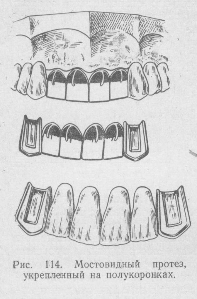 Современные несъемные протезы зубов: новые методики и виды, одиночные и мостовидные