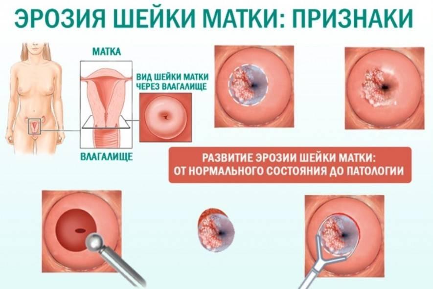 Симптомы, причины, диагностика и лечение врожденной эрозии шейки матки
