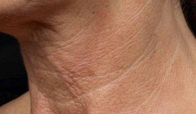 Как избавиться отпервых признаков старения — морщин нашее