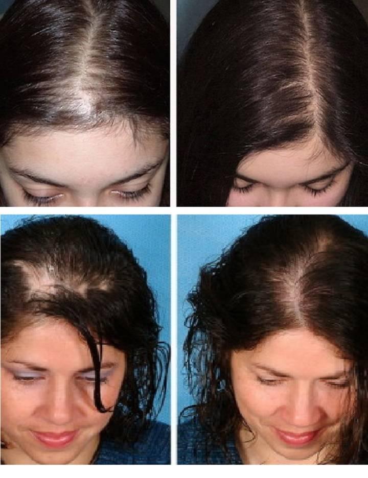 Мезороллер для лечения волос. отзывы на процедуру микроигольчатой терапии