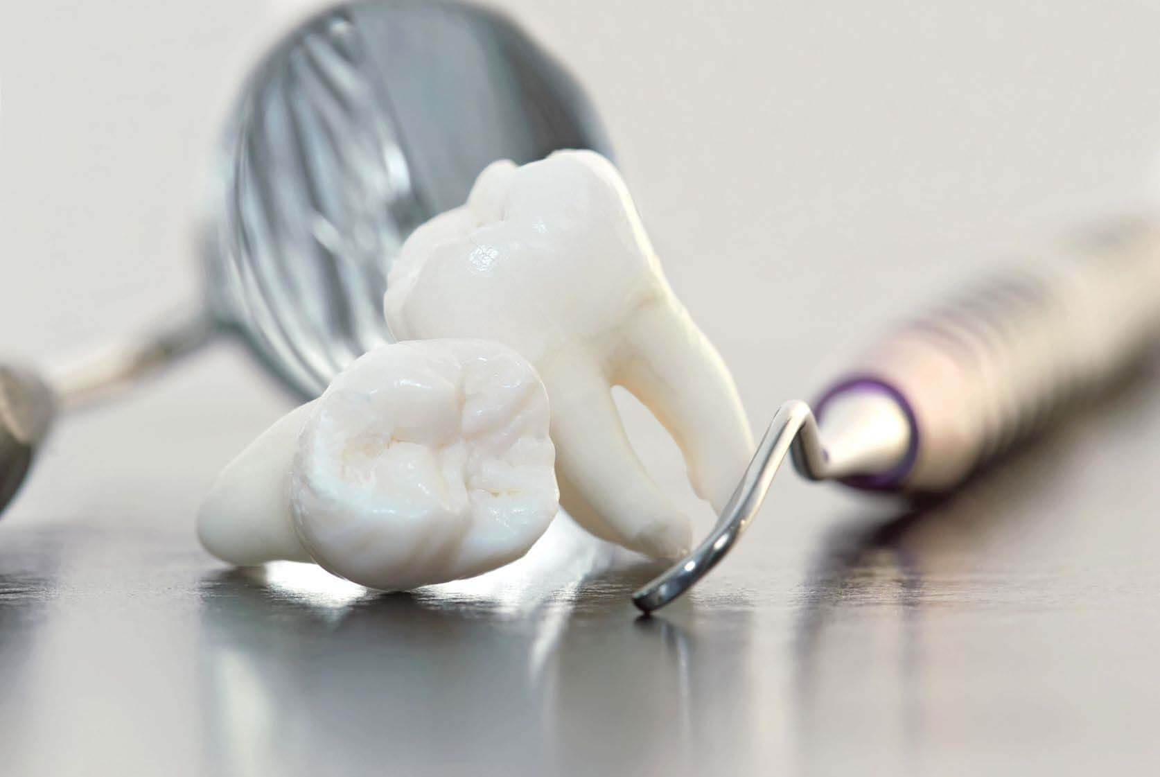 Стоит ли употреблять алкоголь перед посещением стоматолога?